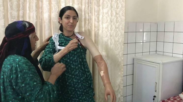 Farah, 27 anni, senza un braccio, prima di ricevere la protesi si vergognava cercava sempre di nascondersi