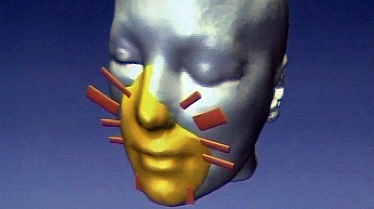 Ricostruzione virtuale della faccia di un paziente prima dell'intervento