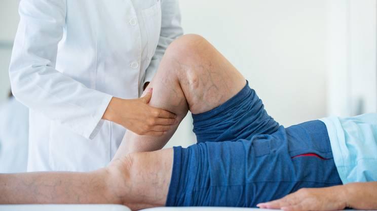 vene varicose, gambe, Medico, Massaggiare, Donne anziane, Paziente, 60-69 anni